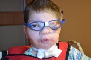 Dwa tygodnie po operacji makrostomii, czyli mięśnia okrężnego ust.